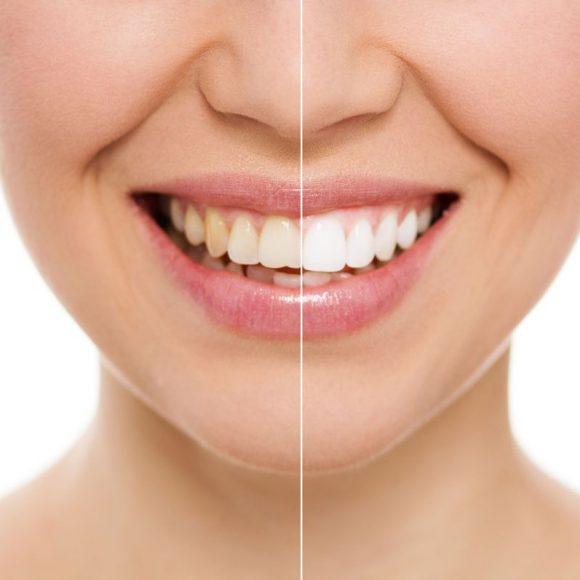 Pour un blanchiment dentaire en toute sécurité et efficacité, confiez cette opération à votre chirurgien dentiste