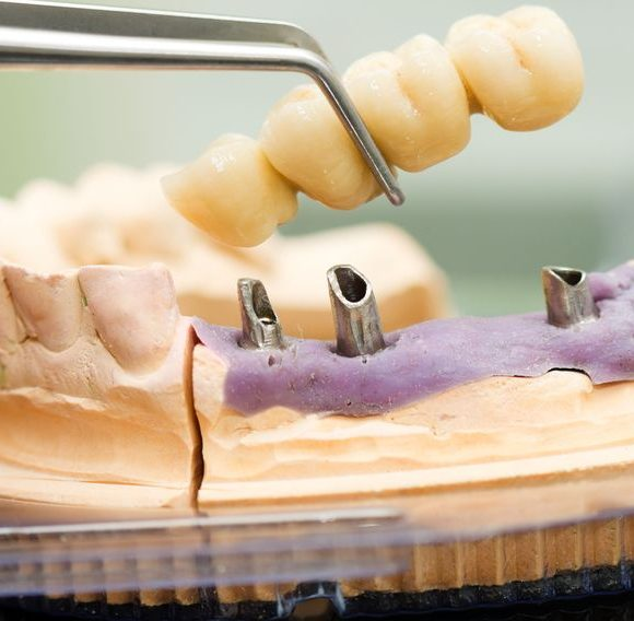 pose d′un bridge dentaire sur implants