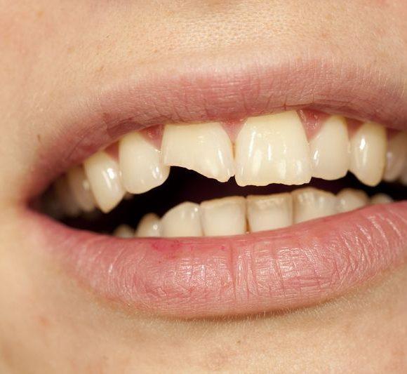 Le succès de réparation d′une dent cassée dépend en partie de la rapidité d′intervention.