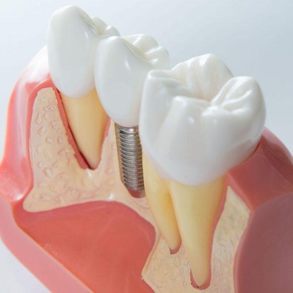 Schéma vue en coupe d′un implant dentaire