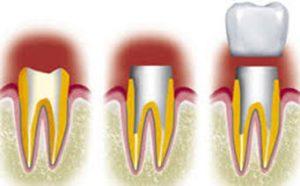 schema couronne dentaire Le Perreux sur Marne Bry sur Marne