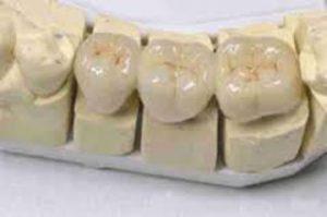 couronne dentaire Le Perreux sur Marne Bry sur Marne