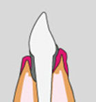 parodontose le perreux sur marne bry sur marne