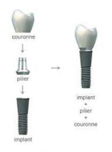 implant denatire Le Perreux sur Marne Bry sur Marne
