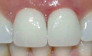 prothese dentaire Le Perreux sur Marne Bry sur Marne